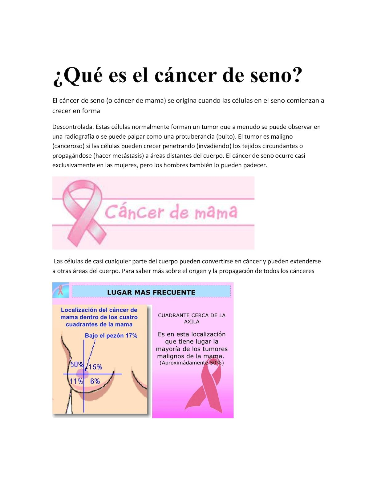 que es cancer de seno
