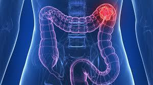cancer de colon simptome si tratament paraziti trandafir japonez