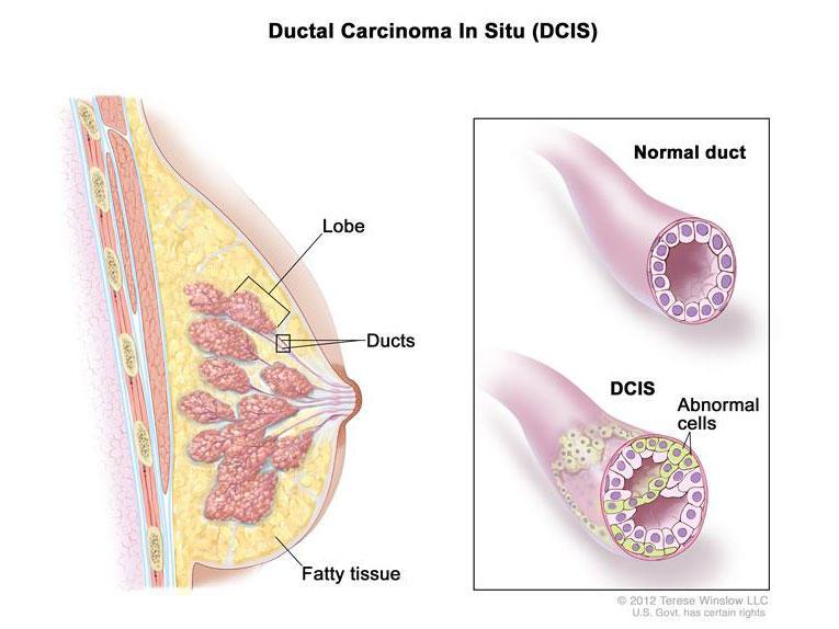 intraductal papilloma tumor