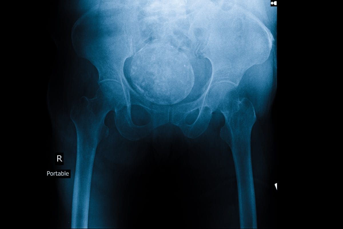 Ovarian cancer on x ray, Hpv causes ovarian cancer