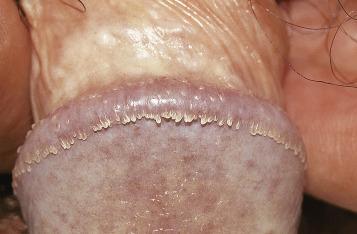 Condyloma acuminatum természetes kezelés. Vírusos szemölcs tünetei és kezelése
