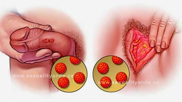 cum se ia enterobioza