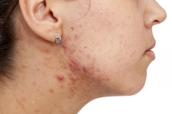 pierderea în greutate și cicatrici de acnee zinc slabire
