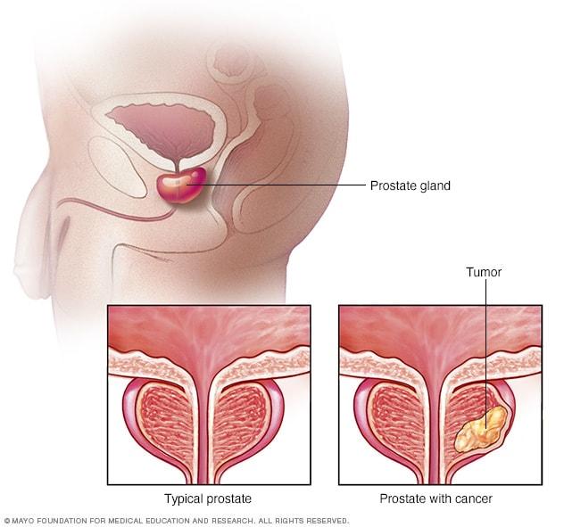 A prosztata adenoma mérete. Műtét prosztatagyulladás érzéstelenítésére