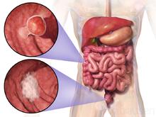 cancer colorectal stade 4 esperance de vie detoxifiere ten