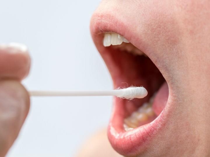 papiloma en garganta o boca hpv impfung durchfall