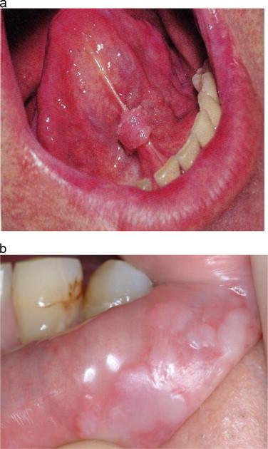 hpv and papilloma papilloma virus bocca
