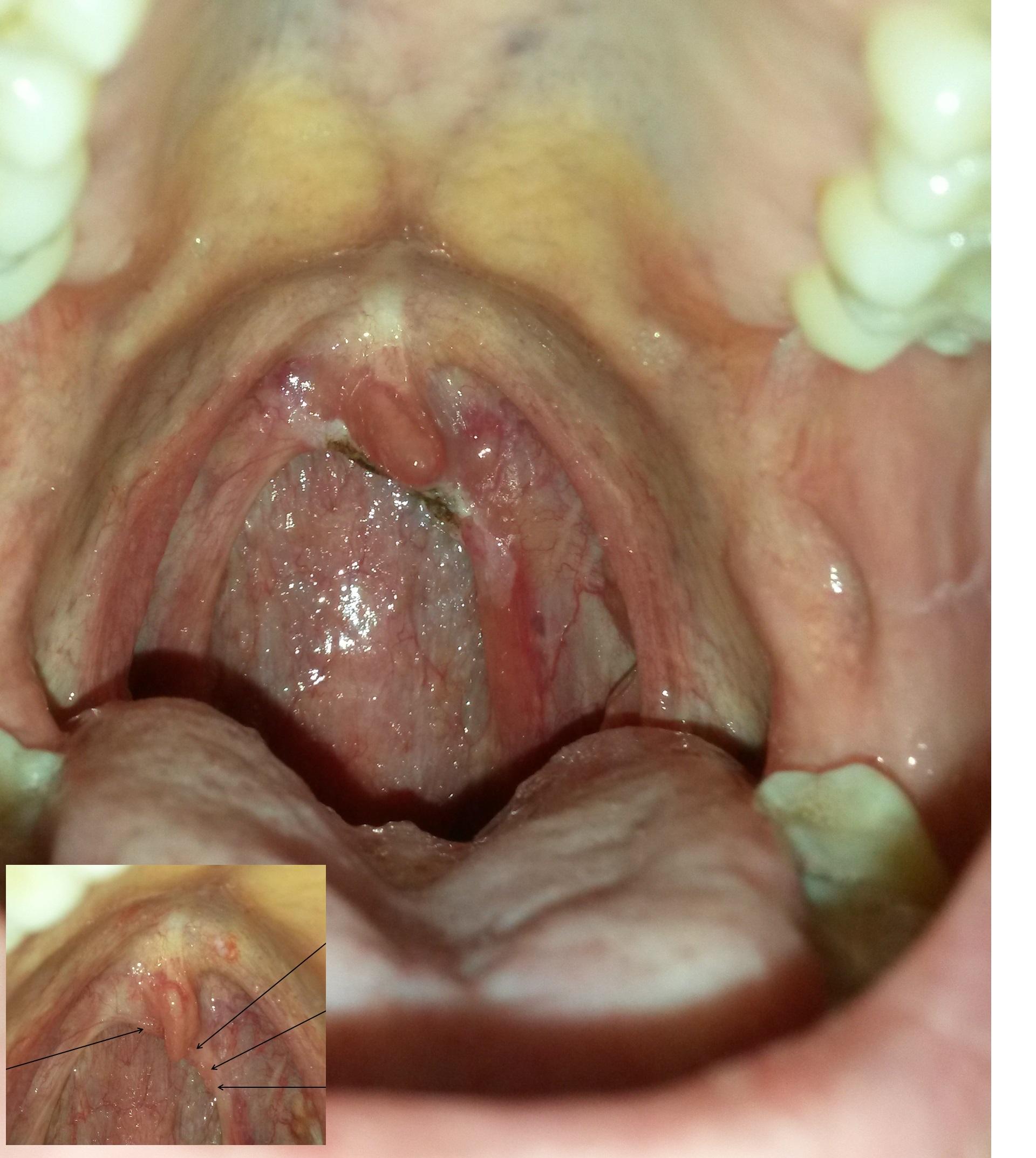 hpv warts throat treatment