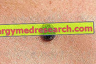 papilloma histopathology
