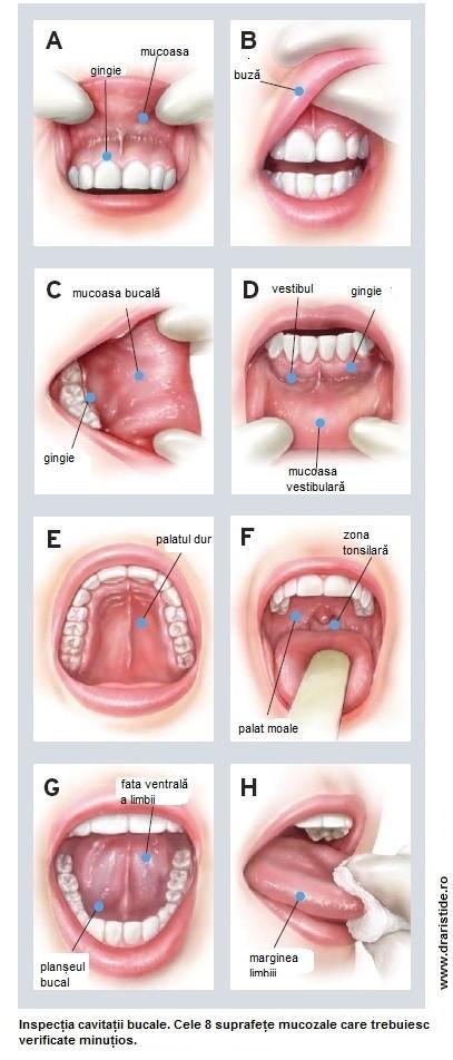 cancerul orofaringian simptome