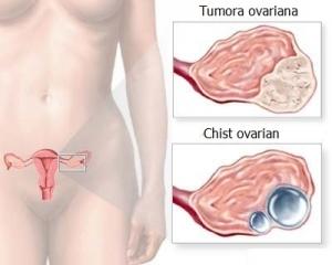 simptome cancer de ovare helminthum sistemic moare
