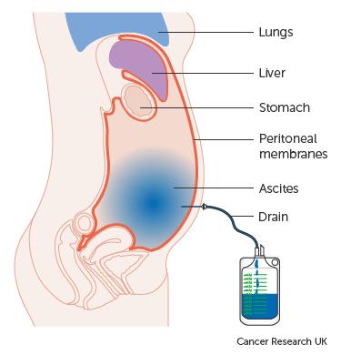 gastric cancer ascites cancer colon brca