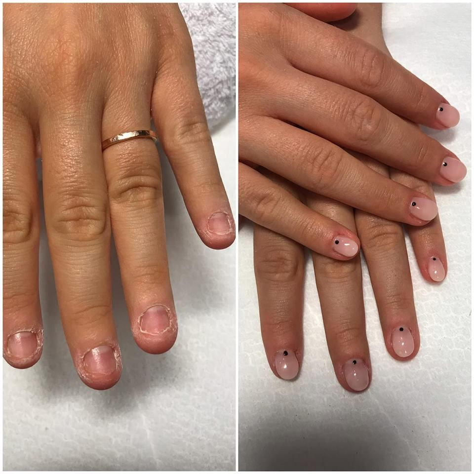 cancer de piele unghii cancer laringian la copii