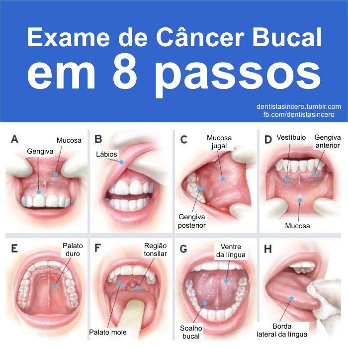 Virus del papiloma y cancer de garganta, Papiloma cancer garganta, Cancer de garganta hpv