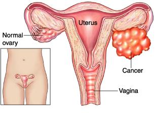 cancer ovare cauze cancer hormonal contraceptive
