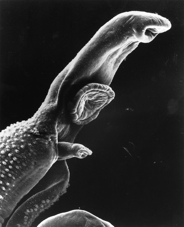 hpv all types papiloma krema upotreba