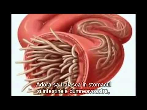 tipuri de viermi din corpul uman)
