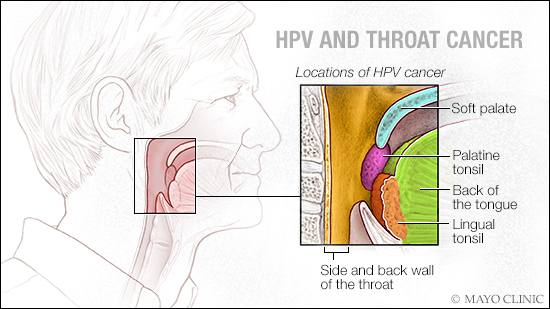 Hpv related throat cancers