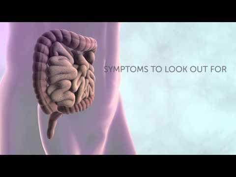 am invins cancerul de colon hpv face cancer