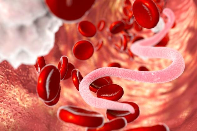 tratamentul și diagnosticul helmintiazei)