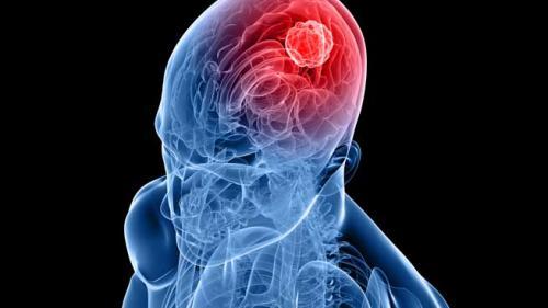 pancreatic cancer best treatment