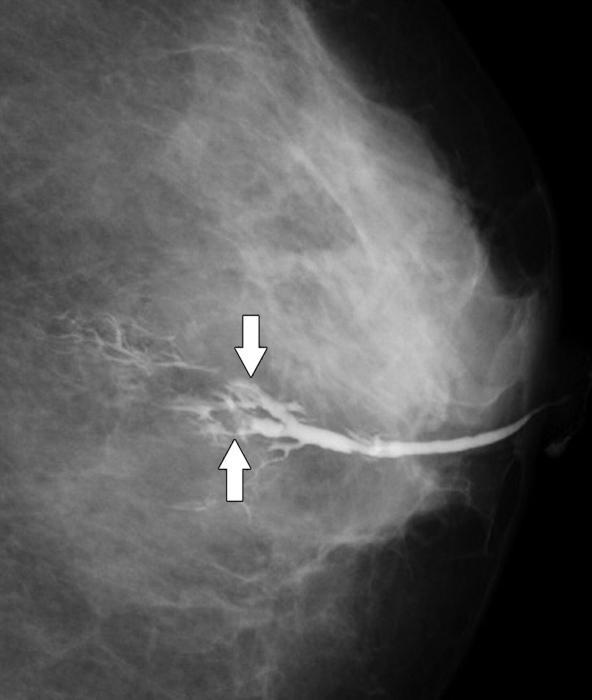 papilloma seno intervento)