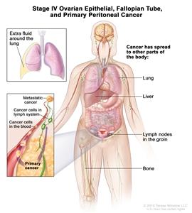 hpv in gola sintomi viermi cum să te descurci cu gv