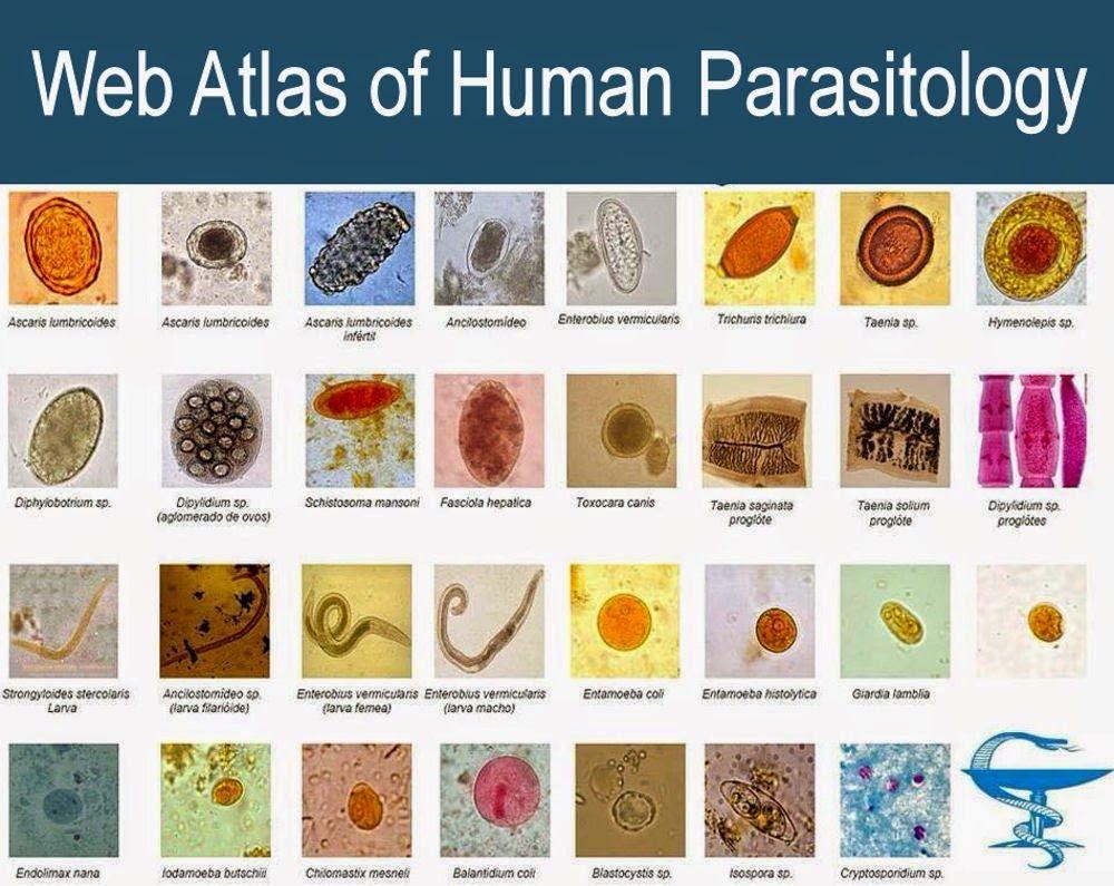 medic parazit