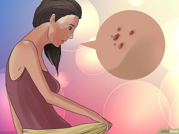 comment diagnostiquer le papillomavirus chez l homme