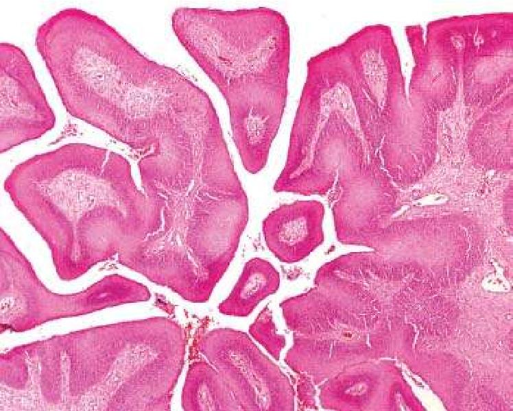 squamous papilloma nedir cancerul limfom non- hodgkin