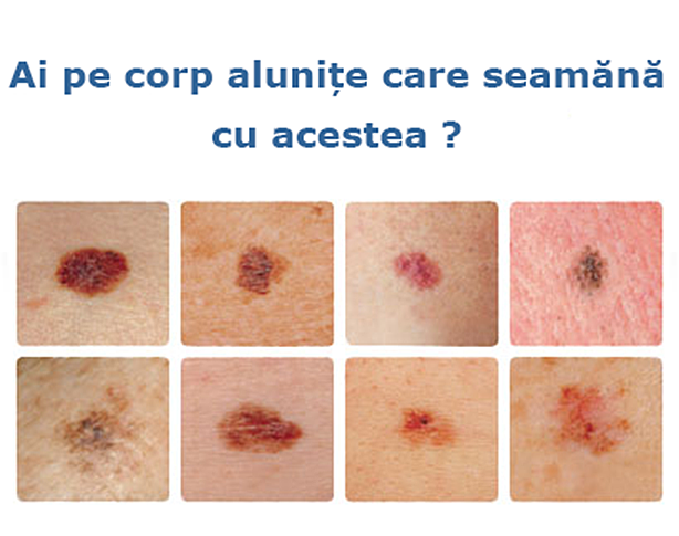 cancer de piele de la soare come scoprire papilloma virus nell uomo