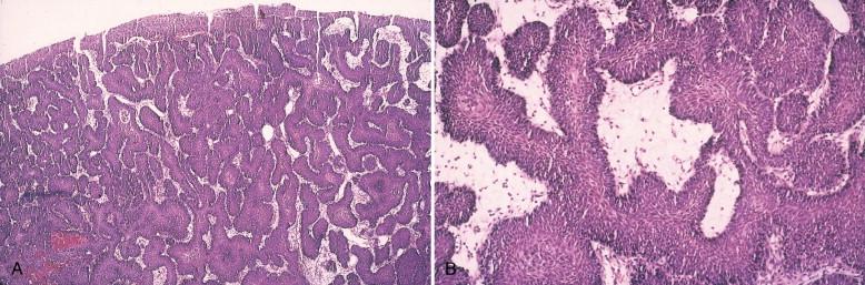 Schneiderian papilloma immunohistochemistry. Rezumate Orl Final