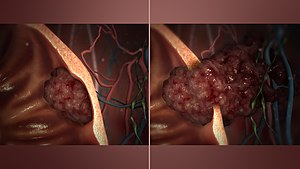 tumoră malignă de migdale
