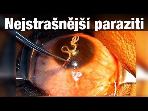 Joalis paraziti. Hpv alto rischio terapia