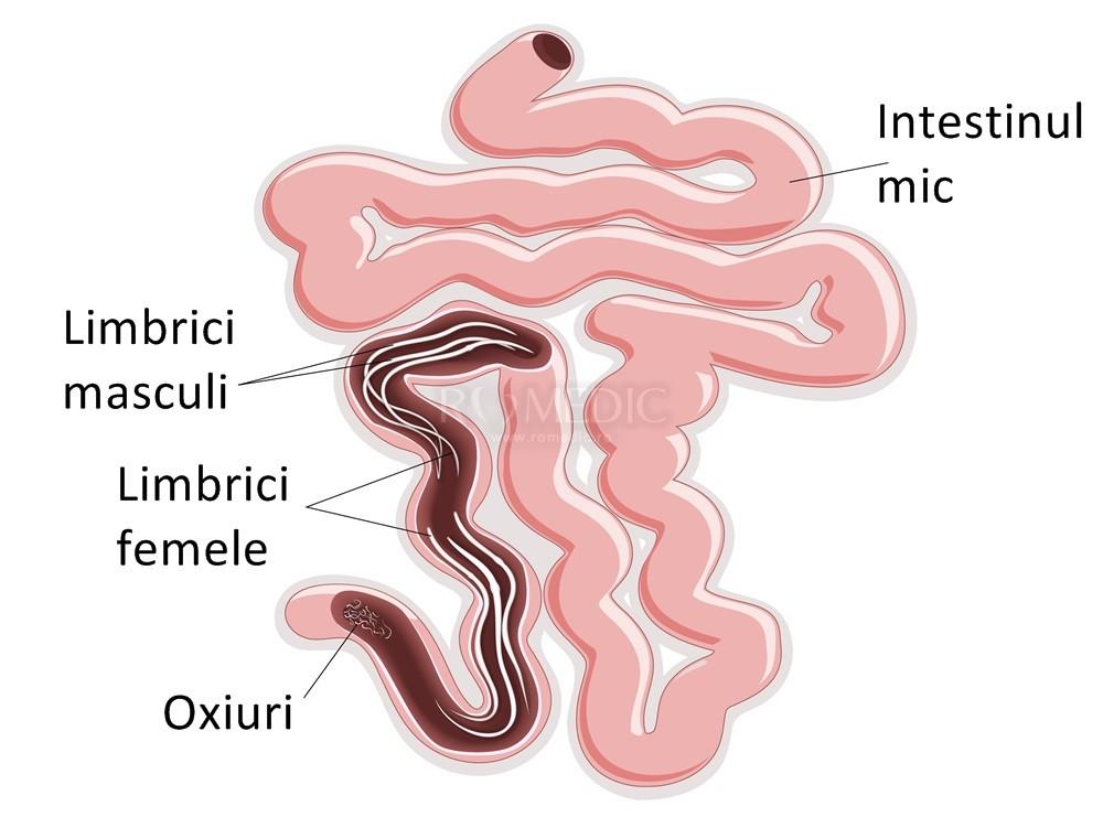 giardia în engleză viermi, cum să eclozi ouă