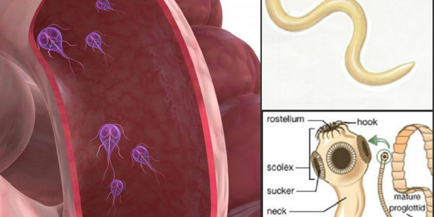 Limbricii – paraziti intestinali