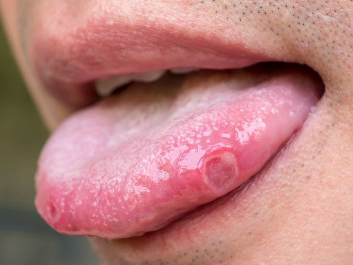 Signos de papiloma en la boca