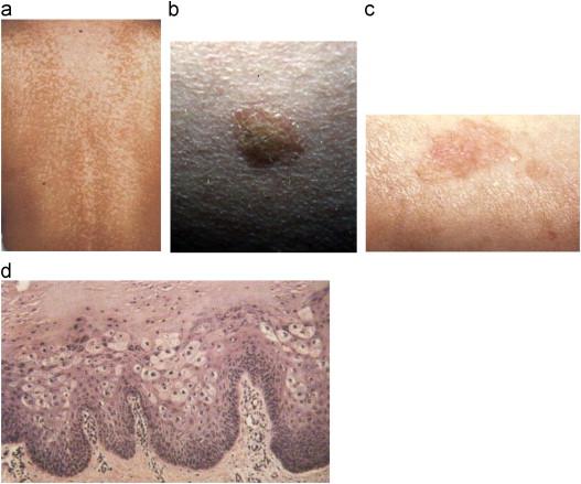 human papillomavirus infection bumps