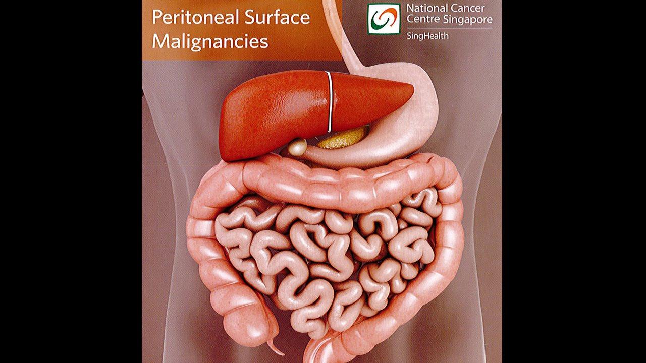 cancer no peritonio gastric cancer kills