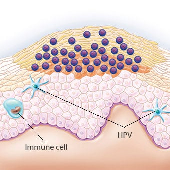 hpv cancer virus