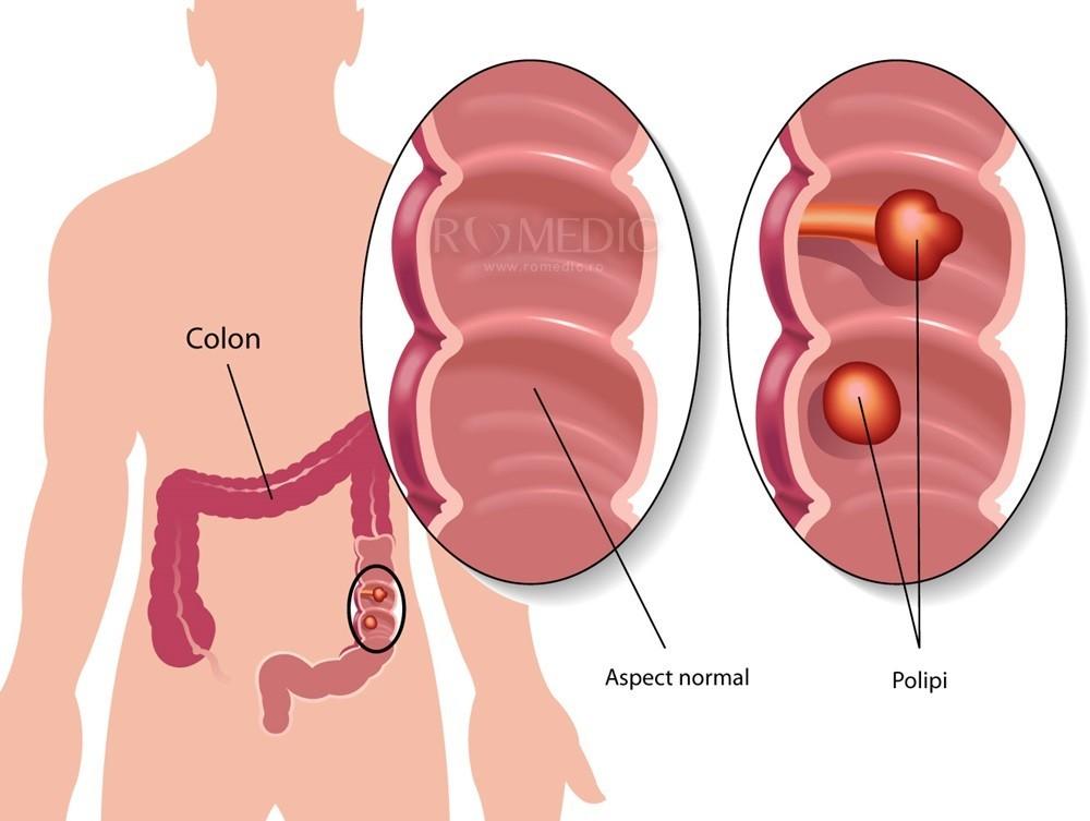 metode eficiente de detoxifiere gastric cancer etiology