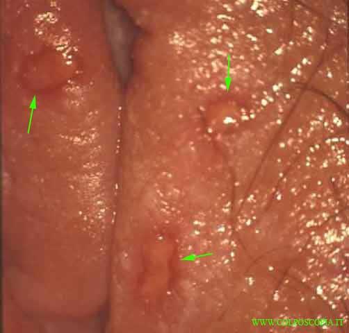 Papilloma virus entro quanto tempo si sviluppa, - Papilloma virus grandi labbra