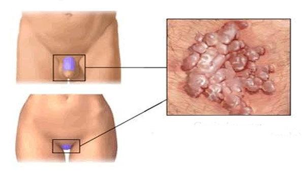 papilloma kezelese hazilag simptome clinice ale enterobiazei