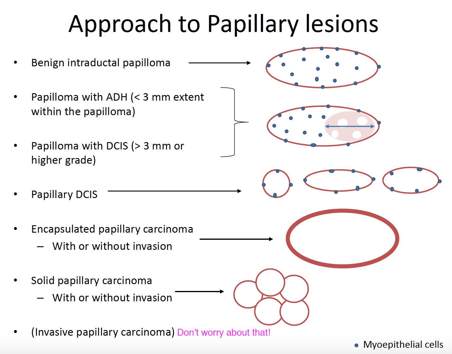 papillary lesion vs papilloma