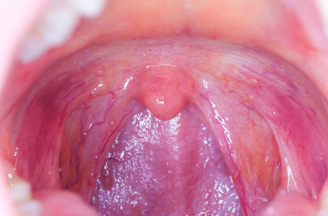 hpv cancer symptoms in females papillomavirus magyarul