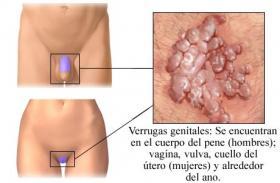 schistosomiasis worm enterobiasis cdc