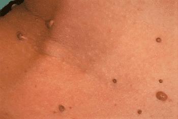 was kosten papillom entfernen papillomavirus kya hai