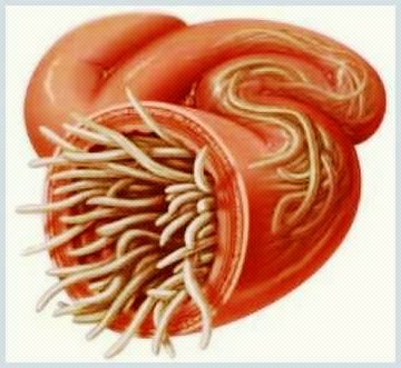 dezvoltarea de viermi paraziti papillary urothelial tumor of low malignant potential