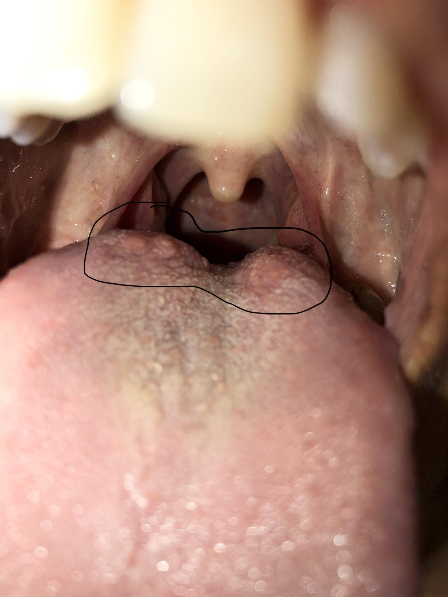 warts on back tongue protocoale pentru tratamentul helmintiazei