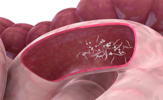 intraductal papilloma pathophysiology vaccino papilloma virus quando non farlo